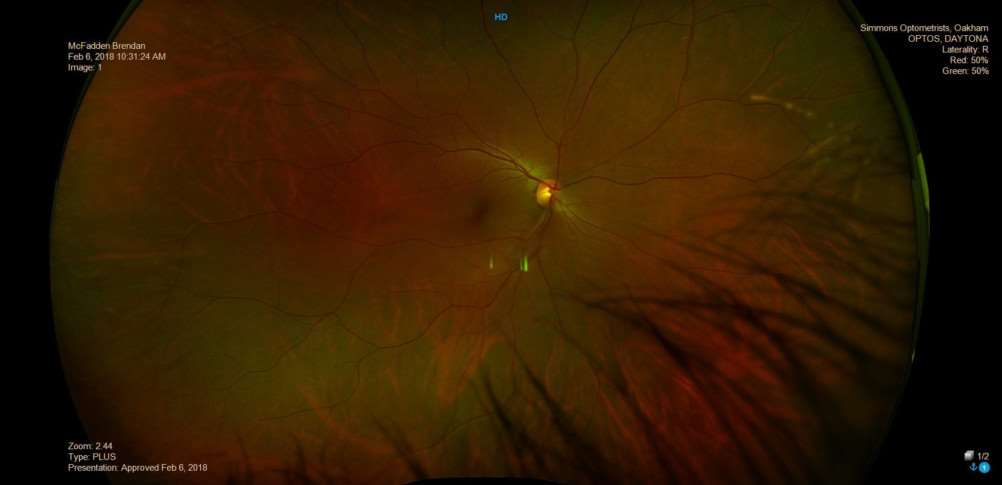 An image from a scan of reporter Brendan McFadden's eye taken on Simmons Optometrist Daytona Plus device. Submitted.