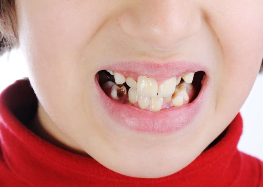 Hospitals spend �140 million on 'rotting teeth' in children