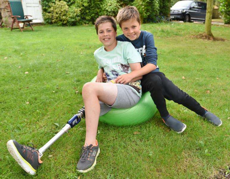 Twin boys Seb and Ben (11) at their home in Wansford. Seb lost his leg after an accident with a coach EMN-160308-091718009