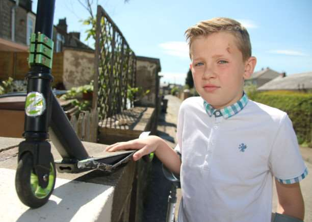 McKenzie Sumner (11) who is lucky to escape serious injury after being hit by a car while riding his scooter?
