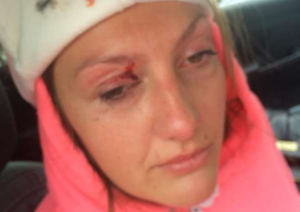 Chloe Jardine-Price pictured with her cut eye sustained in a car accident shortly before she won the Miss Rutland 2015 contest EMN-150707-154703001